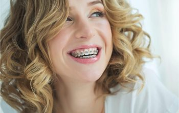 Orthodontic Services From Children To Adults