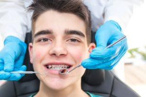 Traditional Braces Orthodontics