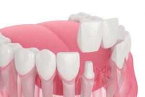 sample dental bridge