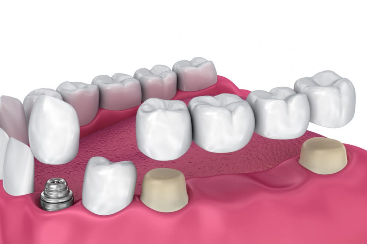 Bridge vs. Implant: How Are They Different From Each Other?