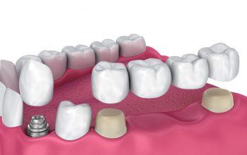 using bridge vs. implant