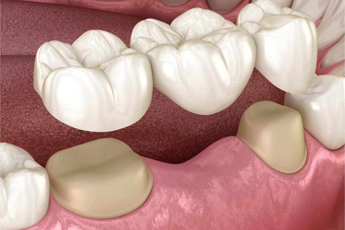 Dental Bridges: Procedure To Replace Your Missing Teeth