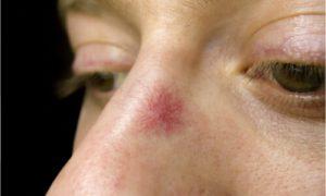 spider veins on the nose