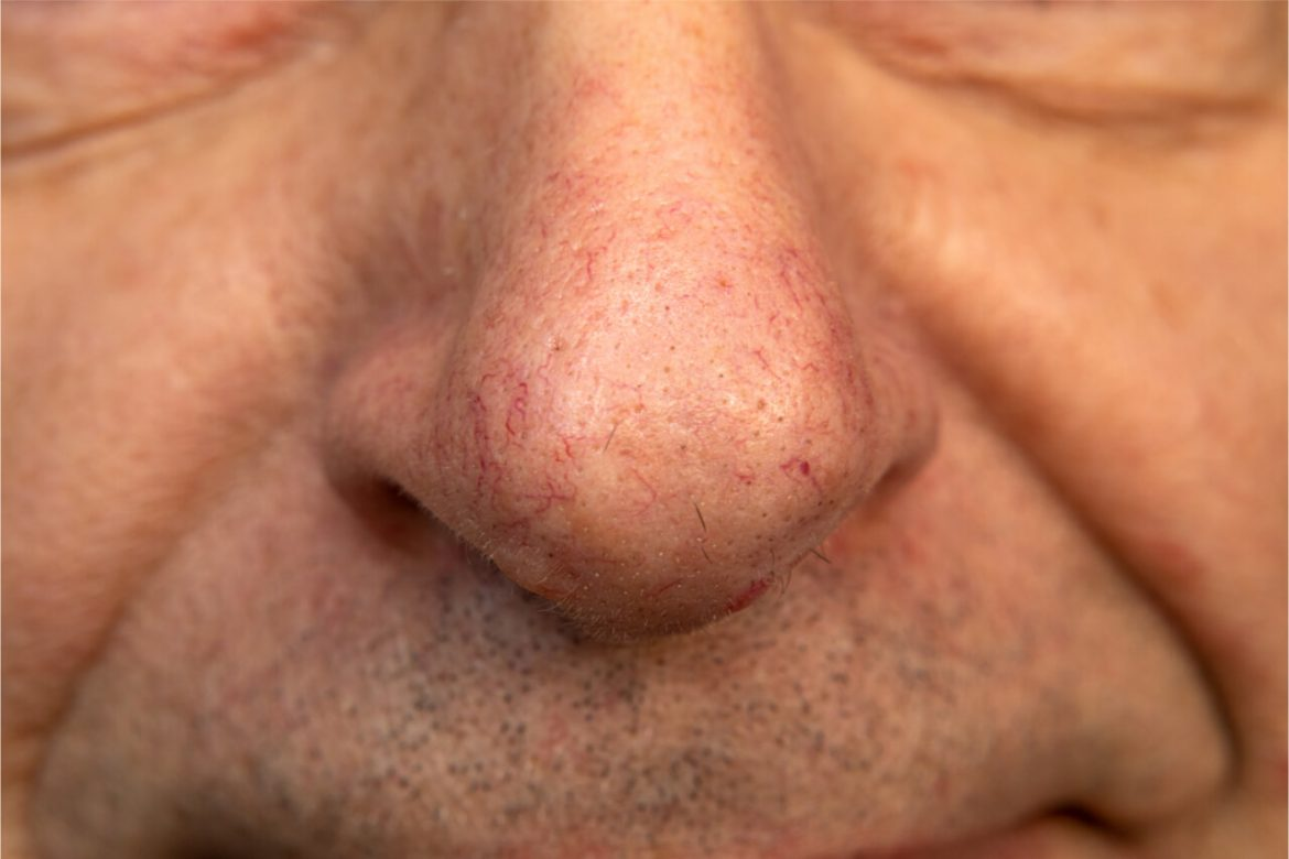 What Are The Signs And Causes Of Broken Capillaries On Nose?