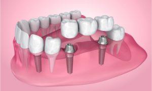 bridge after dental implant