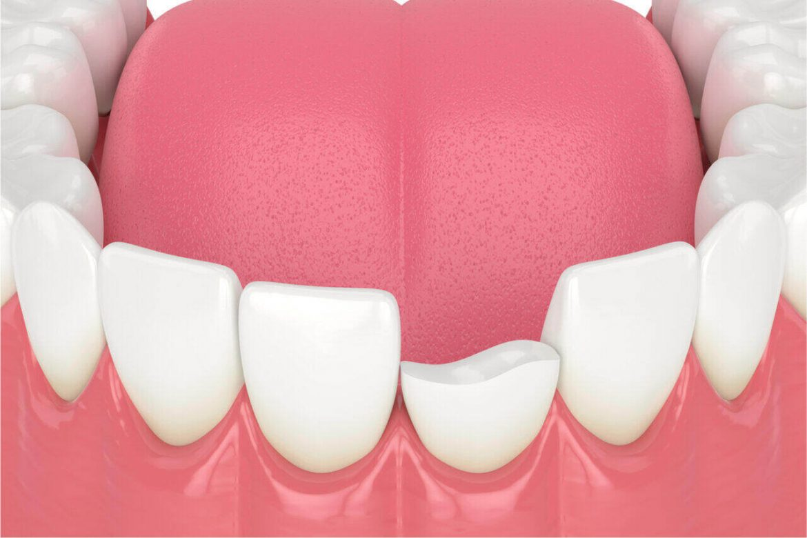 Oh No! I Have A Broken Front Tooth. What To Do About It?